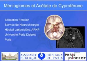 androcur méningiomes et acétate de cyprotérone
