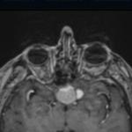 Etude traitant de la régression de méningiome après l'arrêt du Lutenyl (en anglais)