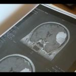 Détection de méningiome par IRM: explications