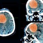 REVUE DE PRESSE JANVIER 2021 – Lutéran- Lutényl et risque de méningiomes